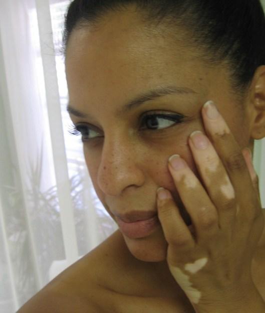 Vitiligo Routine